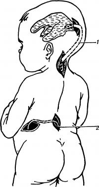 Рис. 6. Схематическое изображение вентрикулолюмбоперитонеостомии при гидроцефалии у ребенка: 1— дренаж, соединяющий желудочек с большой цистерной мозга; 2— дренаж, соединяющий терминальную цистерну спинного мозга с брюшной полостью.