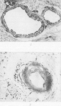 Рис. 1. Микропрепараты ткани головного мозга: 1 — нормальная структура сосудистой стенки артерий малого и среднего калибра в подкорковых узлах головного мозга человека (дано для сравнения); X 400; 2 — плазматическое пропитывание стенки мелкой артерии (указано стрелками) в подкорковых узлах; х 200. Окраска гематоксилин-эозином.