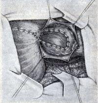 Рис. 7. Операция при диффузной аневризме левого желудочка: диафрагмальный лоскут подшит к миокарду
