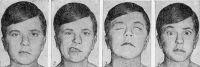 Рис. 2. Больной с симптомами неврита левого лицевого нерва: 1 — асимметрия лица; 2 — сглаженность носогубной складки и усиление асимметрии при оскаливании зубов; 3 — лагофтальм, глазное яблоко поднято кверху и отведено кнаружи (симптом Белла); 4 — асимметрия лобных складок при поднимании бровей.