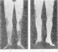 Рис. 13. Термограммы нижних конечностей больного с нарушением кровоснабжения тканей голеней и стоп до (1) и после (2) аортобедренного шунтирования (даны в зеркальном изображении и схематизированы): зона светлых полей занимает большую площадь голени и стопы после операции.