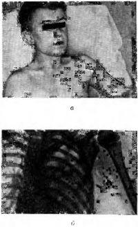 Рис. 4. Внешний вид (а) и рентгенограмма (б) пострадавшего с ранением дробью левого плеча и грудной клетки: а — множественные точечные повреждения кожи левого плеча и грудной клетки; б — множественные инородные тела (дробинки) в мягких тканях левого плеча и грудной клетки, затемнение левого легочного поля, вызванное травматическим гемотораксом.