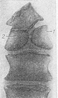 Рис. 12. Прямая рентгенограмма поясничных позвонков: бабочковидный позвонок, состоящий из «активного» полупозвонка (1) и «неактивного» (2) полупозвонка (не имеет верхней замыкающей костной пластинки).