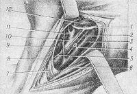 Рис. 2. Схематическое изображение оперативного доступа к левой общей и наружной сонным артериям: 1 — подъязычный нерв; 2 — блуждающий нерв; 3 — внутренняя яремная вена; 4 — общая лицевая вена (отсечена и перевязана); 5 — верхний корешок шейной петли; 6 — грудино-ключично-сосцевидная мышца; 7 — лопаточноподъязычная мышца; 8 — общая сонная артерия; 9 — щитовидная железа; 10 — наружная сонная артерия; 11 — верхняя щитовидная артерия; 12 — двубрюшная мышца.