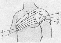 Рис. 38. Наложение колосовидной повязки на область плечевого сустава.