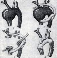 Рис. 7. Операция при аневризме дуги аорты без искусственного кровообращения с временным шунтом. Протезирование дуги аорты и ее ветвей (1 - аневризма дуги аорты, 2—4 - этапы операции)