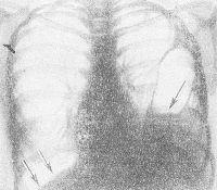 Рис. 3. Обзорная рентгенограмма грудной клетки больного с левосторонней травматической диафрагмальной грыжей: характерно отсутствие четкого контура диафрагмы слева, горизонтальный уровень жидкости в желудке (указан стрелкой), перемещенном в грудную полость. Двумя стрелками указан правый купол диафрагмы.