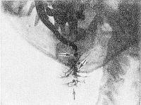 Рис. 3. Сиалограмма левой подчелюстной железы при хроническом сиалодохите: протоки железы неравномерно расширены, контуры их четкие (указано стрелками).