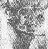 Рис. 6. Рентгенограмма кистевого сустава в прямой проекции: ложный сустав ладьевидной кости, деформирующий артроз лучезапястного сустава; внутрикостный ганглий головчатой кости (указан стрелкой).