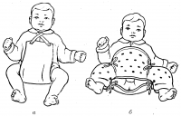 Рис. 10. Дети с врожденным вывихом бедра в процессе лечения: а — разведение бедер с помощью подушки Фрейки, б — разведение бедер и иммобилизация суставов с помощью шины Волкова.