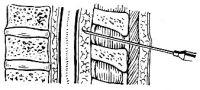 Рис. 18. Пункция перидурального пространства в грудном отделе