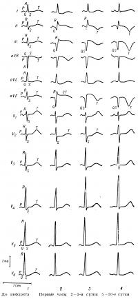 Рис. 11. Динамика изменений ЭКГ при заднедиафрагмальном (нижнем) инфаркте миокарда: 1 — нормальная ЭКГ (до развития инфаркта); 2 — наличие патологического зубца Q в отведениях II, III, aVF, сегмент SТ в отведениях II, III, aVF приподнят, а в отведениях I и aVL дискордантно снижен, снижение сегмента SТ в правых грудных отведениях (неспецифическое изменение); 3— формирование отрицательного зубца T в отведениях II, III,aVF, снижение сегмента SТ в отведениях I, aVL, V1 —V3;, сохраняется, увеличение зубца R в отведениях V3—V5; 4 — завершение формирования отрицательного «коронарного» зубца T в отведениях II, III, aVF; вольтаж 1 тв; отметчик времени 1 сек.