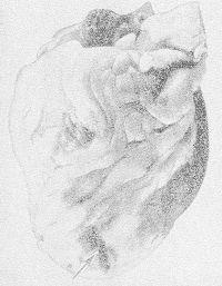 Рис. 9. Макропрепарат сердца: разрыв передней стенки левого желудочка сердца вблизи верхушки (указан стрелкой).