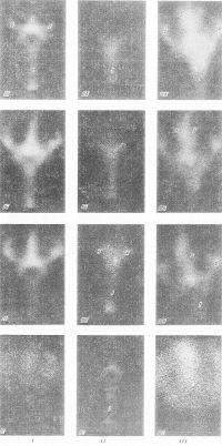Рис. 2. Гамма-топограммы ликворных путей головного и спинного мозга (передняя прямая проекция): в норме (I); при окклюзии ликворных путей опухолью в области сильвиева водопровода (II); при открытой гидроцефалии воспалительной природы (III)