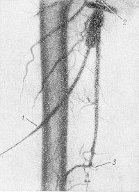 Рис. 15. Пункционная артериограмма правой бедренной артерии при окклюзии ее в дистальном сегменте: 1— трубка-удлинитель, подводящая контрастное вещество к пункционной игле; 2— место введения пункционной иглы; 3— пораженный сегмент.