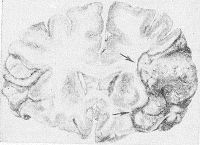 Рис. 11. Фронтальный срез головного мозга на уровне передних рогов боковых желудочков: белый инфаркт (указан стрелками) в бассейне правой средней мозговой артерии.