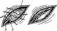 Рис. 29. Схема пластики пахового канала по Ру — Краснобаеву при паховой грыже у детей: грыжевой мешок удален, культя его под апоневрозом наружной косой мышцы (1); на апоневроз и ножки наружного кольца пахового канала (2) наложены суживающие швы; 3 — семенной канатик. На рисунке справа — швы затянуты.