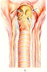 Рис. 5. Макро препарат гортани при кори, осложненной вторичной инфекцией; стрелками указаны некротические изменения слизистой оболочки.