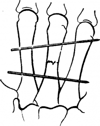 Рис. 8. Схематическое изображение чрескостной фиксации спицами при переломе пястной кости (сплошными линиями показана проекция спиц).