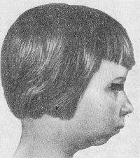 Рис. 10. Больная ювенильным ревматоидным артритом с недоразвитой нижней челюстью (микрогения).