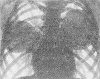 Рис. 5. Рентгенограмма грудной клетки при эхинококкозе легких (прямая проекция): в области средней доли правого легкого и в нижних сегментах верхней доли левого легкого определяются две округлые темные тени эхинококковых кист, в других отделах легочный рисунок не изменен.