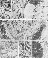 Рис. 4. Микропрепараты (а, б, ж) и Электронограммы (в, г, д, е, з) слизистой оболочки тонкой кишки при странгуляционной непроходимости: а — отек цитоплазмы базальных отделов каемчатых энтероцитов (1), стромы кишечной ворсинки (2), полнокровие капилляра (3), х 900; б — набухание цитоплазмы эпителиальной клетки (1) с формированием пузыревидных выпячиваний (2) в зоне щеточной каемки (3), х 900; в — вакуолизация микроворсинок (1) щеточной каемки (2), х 22 000; г — субворсинчатый отек цитоплазмы (1) эпителиальной клетки с разряжением терминальной сети (2), X 22 000; д — сужение межклеточных щелей (указаны стрелками) клеток эпителия в базальных отделах цитоплазмы, х 18 000; e — укорочение и разрежение микроворсинок (1), крупные вакуоли (2) в цитоплазме (3) эпителиальных клеток, х 18 000; э/с — расширение просвета капилляра (1) с признаками агрегации эритроцитов (2) и тромбоцитов (3), х 900; 3 — эритроциты с признаками агрегации (1) в просвете капилляра (2) стромы кишечной ворсинки, X 18 000.