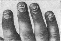 Рис. 18. Псориатический артрит межфаланговых суставов кисти. Выраженные трофические изменения ногтей. Утолщение дистальных межфаланговых суставов.