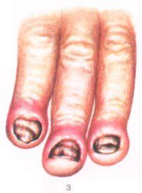 Рис. 3. Кандидозная онихия (утолщение и помутнение ногтевых пластин) и паронихия (воспаленные ногтевые валики, эпонихий отсутствует).