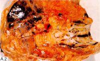 Рис. А.2. Макропрепарат легкого; центральный рак с экзофитной формой роста: в промежуточном бронхе (вскрыт) видна эндобронхиальная мелкобугристая опухоль, обтурирующая просвет (1), Обтурационный пневмонит базальных сегментов (2), густая гнойная мокрота в просветах сегментарных бронхов (3). Белые пятна на рисунках — блики.