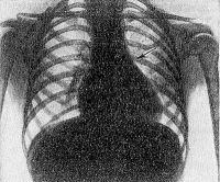 Рис. 18. Рентгенограмма грудной клетки при стенозе легочного ствола: западение дуги легочного ствола по левому контуру сердца (указано стрелкой), обедненность легочного рисунка.