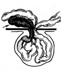 Рис. 2. Схема ретроградного (обратного) ущемления кишки: стрелкой указана кишечная петля, омертвевшая внутри брюшной полости из-за сдавления сосудов брыжейки в ущемленном грыжевом кольце.