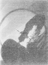 Рис. 4. Прицельная рентгенограмма луковицы двенадцатиперстной кишки больного язвенной болезнью: стрелками указаны две ниши, расположенные на противоположных стенках луковицы двенадцатиперстной кишки («целующиеся» язвы).