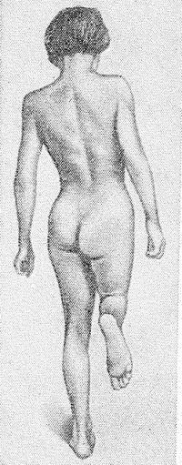 Рис. 6. Больная с поражением левого тазобедренного сустава (положительный симптом Тренделенбурга): больная стоит на пораженной ноге, при этом ягодичная складка на противоположной стороне опущена.