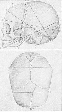 Рис. 2. Схематическое изображение строения и размеров головки (мозгового черепа) зрелого плода: а — вид сбоку; 1 — большой косой размер, 2 — прямой размер, 3 — подзатылочно-лобный размер, 4 —лобная кость, 5 — вертикальный размер, 6 — малый косой размер, 7 — теменная кость, 8 — затылочная кость, 9 — височная кость; б — вид сверху; 1 — большой поперечный размер, 2 — большой родничок, 3 — малый поперечный размер.
