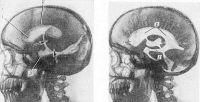 Рис. 8. Рентгенограмма черепа в боковой проекции при пневмовентрикулографии: эпендимома в области треугольника бокового желудочка (указана стрелками) обтурирует межжелудочковое отверстие, обусловливая гидроцефальное расширение переднего рога, тела и нижнего рога бокового желудочка (справа —аналогичная рентгенограмма черепа здорового человека): 1 — передний рог бокового желудочка; 2 — тело бокового желудочка; 3 — нижний рог бокового желудочка.