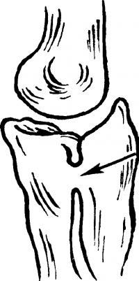 Рис. 8. Схематическое изображение локтевого сустава при врожденном лучелоктевом синостозе (указан стрелкой).