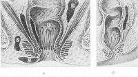 Рис. 1. Схематическое изображение возможной локализации гнойников в около-прямокишечной клетчатке при парапроктите: а— фронтальный разрез; б — сагиттальный разрез; 1 — полость прямой кишки, 2— заднепроходный канал, 3 — мышцы тазового дна, 4— седалищные кости, 5 —10 — гнойники (5— подкожный, 6 — подслизистый, 7 — ишиоректальный, 8— 9 — пельвиоректальные, 10 — ретроректальный); пунктиром обозначены пути распространения гноя.