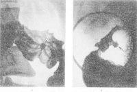 Рис. 5. Прицельные рентгенограммы луковицы двенадцатиперстной кишки больного язвенной болезнью в различных проекциях: а— фасное изображение язвы в виде депо бариевой взвеси (указано стрелкой) с конвергенцией к ней складок слизистой оболочки (ниша рельефа, или фасная ниша); б— профильное изображение язвы (указано стрелкой) с воспалительным валом по ее краям (профильная, или контурная, ниша).