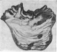 Рис. 3. Кисты в мосту мозга при прогрессирующем бульбарном параличе (два черных пятна в нижней половине рисунка).