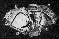 Рис. 23. Макропрепарат мозжечка с опухолью (1) правого полушария: правая верхняя ножка мозжечка (2) и зубчатое ядро (3) смещены к средней линии и окаймляют медиальный край опухоли, положение левой верхней ножки (4) и зубчатого ядра (5) не изменено.