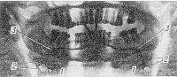 Рис. 1. Пантомосиалограмма неизмененных подчелюстных желез: 1 — паренхима железы, 2 — протоки железы, 3 — подчелюстной проток (контуры протоков ровные, четкие).