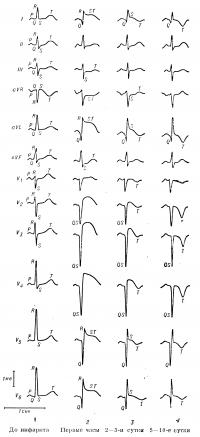 Рис. 10. Динамика изменений ЭКГ при трансмуральном переднем инфаркте миокарда (с распространением на перегородку, верхушку и боковую стенку левого желудочка): 1 — нормальная ЭКГ (до развития инфаркта); 2 — наличие патологического зубца Q в отведениях I, aVL, V5, V6 и зубца QS в отведениях V2—V4; подъем сегмента SТ в отведениях I, aVL, V2—У6; дискордантное снижение сегмента SТ в отведениях III и aVF; 3 — формирование отрицательного зубца T в отведениях I, aVL, V1 — V6; сегмент SТ в этих отведениях остается несколько приподнятым; 4 — завершение формирования отрицательного зубца T в отведениях I, aVL, V1—V6, в отведениях V2—V4 сохраняется комплекс QS; вольтаж 1 тв; отметчик времени 1 сек.