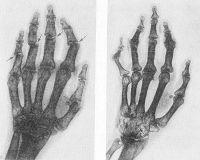 Рис. 9. Рентгенограммы кистей при 4-й (по схеме Стайнброккера) стадии ревматоидного артрита: а — распространенный остеопороз, сушение межсуставных щелей, выраженные деструктивные изменения, включая остеолиз проксимальных межфаланговых суставов (указаны стрелками); на рис. б наряду с этим отмечается костный анкилоз всех межзапястных суставов (указан стрелкой).
