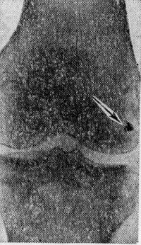 Рис. 4. Рентгенограмма коленного сустава при огнестрельном ранении без повреждения костей (стрелкой указан металлический осколок в области коленного сустава).
