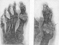 Рис. 3. Рентгенограмма стопы (слева; и ее увеличенный фрагмент — I палец (справа) при хроническом подагрическом артрите: типичные деструктивные изменения костной ткани в области плюснефаланговых суставов; разрушение коркового костного вещества в области головки I плюсневой кости — симптом «вздутия костного края» (указано стрелкой).