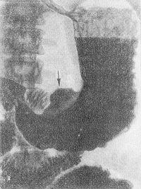Рис. 2. При более глубоких язвах, особенно в стадии обострения в связи с воспалительными изменениями, отеком и ригидностью участков стенки, прилежащих к кратеру, а также в результате мышечного спазма образуется различной степени утолщение стенки вокруг язвы, имеющее на рентгенограммах вид прозрачного воротничка, ленты или вала, расположенного между язвой и просветом желудка. При дозированной компрессии брюшной стенки (рукой или специальным приспособлением) форма и размер ниши не изменяются.