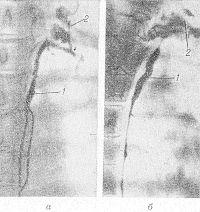 Рис. 3. Томограммы грудного протока (а— прямая, б — боковая проекции): грудной проток (1) на уровне Т4—Т5 делится на два ствола, видна группа надключичных лимфатических узлов (2).