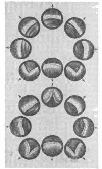 Изменения шейки мочевого пузыря при аденоме предстательной железы; симптом «занавески» — выбухание средней (1) и боковых (2) долей (цистоскопическая картина).