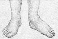 Рис. 8. Стопы при левостороннем паралитическом плоскостопии.