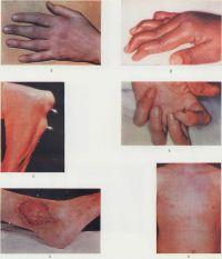 Рис. 1. Кисть больной ревматоидным артритом: пальцы имеют веретенообразную форму, обусловленную артритом проксимальных межфаланговых суставов. Рис. 2. Кисть больной ревматоидным артритом: деформация пальцев по типу «шеи лебедя». Рис. 3. Предплечье и дистальная часть плеча больной ревматоидным артритом: стрелками указаны подкожные ревматоидные узлы. Рис. 4. Кисть больного ревматоидным артритом при дигитальном артериите: стрелками указаны точечные некрозы кожи пальцев. Рис. 5. Обширная язва наружной поверхности нижней трети голени больного ревматоидным артритом с васкулитом. Рис. 6. Больной ювенильным ревматоидным артритом: ревматоидная сыпь на передней поверхности грудной клетки и живота (особенно выражена в области реберных дуг) на фоне гиперемии кожи.